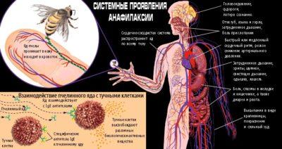 Как проявляется аллергия
